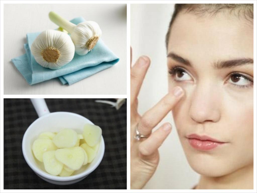 Tổng hợp cách trị các loại mụn trên da mặt hiệu quả